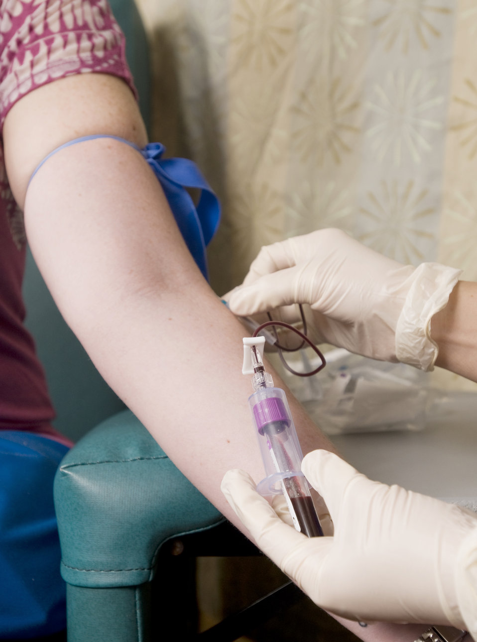 This image depicts a female patient seated in a clinic, who was in the process of having some blood extracted from her left arm's antecubital vein during a phlebotomy procedure. The gloved hands of the phlebotomist are seen securing the venipunture site: right hand holding the needle tipped catheter; right hand holding the purple-tipped blood collection vacutainer tube.